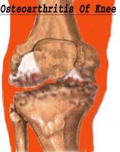 diagram of interier of arthritic knee joint